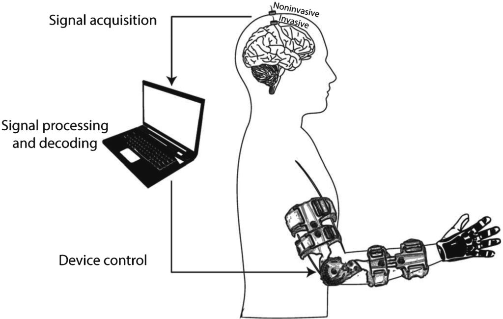 Rehago | Diagramm Brain-Machine-Interface